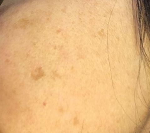skóra zezmianami pigmentacyjnymi napoliczku